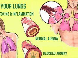 Простые способы избавиться от надоедливой мокроты в лёгких и горле (Мгновенный РЕЗУЛЬТАТ)
