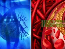 Сердечный приступ: риски и предупреждающие симптомы