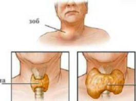 Щитовидная железа: дефицит витамина вызывает серьёзные нарушения её функций