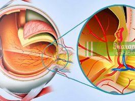 Симптомы дегенерации желтого пятна и простой домашний тест диагностики