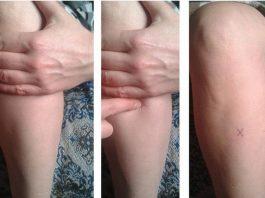 Точка на Вашем теле, которая вылечит от 100 болезней