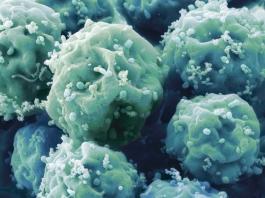 Употребляя этот минерал каждый день вы снизите риск развития рака в организме