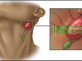 Воспаление лимфатической системы: причины, симптомы и профилактика