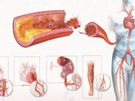 Эти продукты эффективно очищают артерии… Я уже включила их в свой рацион