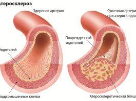 Сильная смесь – и артерии, вены начнут очищаться от бляшек, а проблемы с кровообращением и сердцем не будут беспокоить