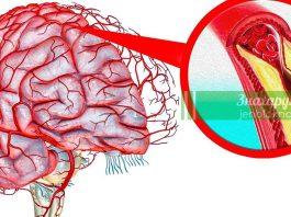 Чистим сосуды головного мозга с помощью мощных народных средств