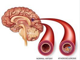 Как почистить сосуды головы и всего организма. Профилактика атеросклероза