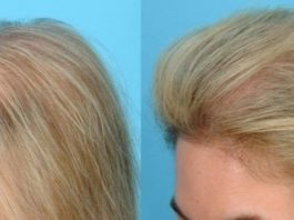 Подтянуть кожу, избавиться от морщин, а также устранить пятна на лице вам поможет этот метод
