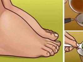 Попрощайтесь с задержкой жидкости, отёками и лишним весом всего за одну неделю в домашних условиях
