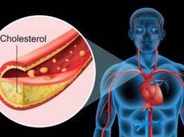 Вот как вычистить сосуды от холестерина за 40 дней без единого лекарства