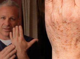 Американский доктор рекомендует: простой трюк быстро устранит пигментные пятна на коже