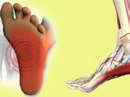 Не стоит терпеть боль. Подошвенный фасциит, боли в пятке и стопе можно устранить всего за 7 минут