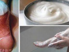 Полностью устранить трещины на пятках, мозоли, натоптыши и даже варикоз поможет средство из 2 ингредиентов
