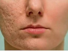 Протрите этим любой шрам, морщину или пятно на коже и посмотрите, как они исчезнут через несколько минут