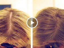 Нанесите эти 6 ингредиентов на волосы и они будут расти густыми и толстыми. Мгновенный результат