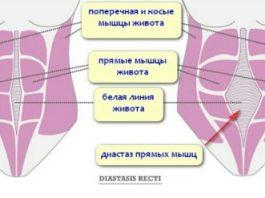 Из-за диостаза вы не сможете похудеть. Все что нужно в этой статье