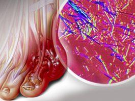 Удали мочевую кислоту и предотврати подагру и боли в суставах. Эти рецепты дают быстрый результат, смотри