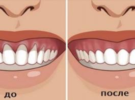 Вы заметили оголение шейки или корня зуба. Немедленно начинайте лечение — 6 натуральных рецептов