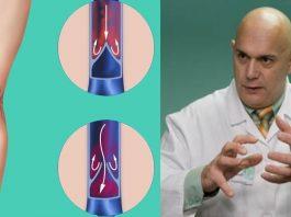 «Пора лечить плохие, больные вены» — Доктор Бубновский излагает, как лечить варикоз и как облегчить состояние…