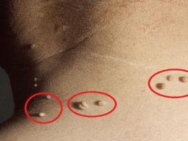 Средство для удаления бородавок и кожных папиллом: легко, безболезненно и дешево