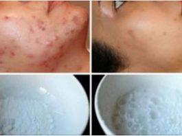 Маска для лица, магическим образом удаляющая шрамы от угревой сыпи, пятна и морщины уже после 2-го использования