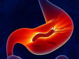 Рецепт японского врача для быстрого устранения опасной бактерии Хеликобактер пилори