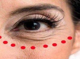 «Стираем» морщины и мешки вокруг глаз. Нужен всего 1 продукт