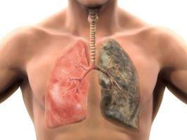 Что происходит с вашим телом, когда вы бросаете курить