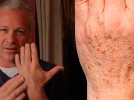 Доктор рекомендует: простой трюк быстро устранит пигментные пятна на коже