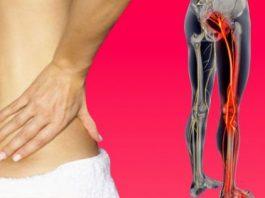 Одно простое упражнение, чтобы избавиться от боли в пояснице и защемления седалищного нерва