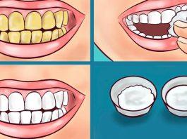 Гарантировано. Вот как осветлить желтые зубы за 2 минуты с помощью простого натурального средства. 100% результат